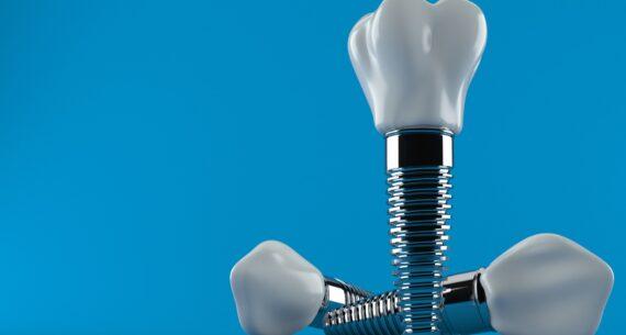 4 Ventajas de los implantes dentales